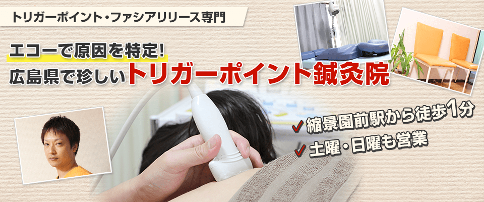 手根管症候群トリガーポイント療法