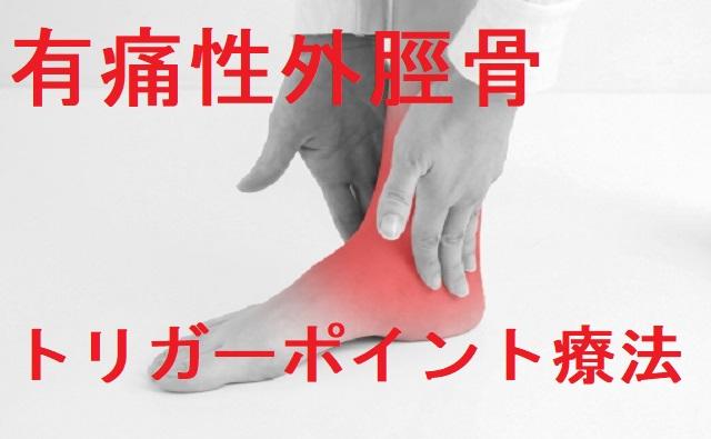 有痛性外脛骨トリガーポイント療法
