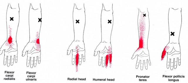 手根管症候群トリガーポイント