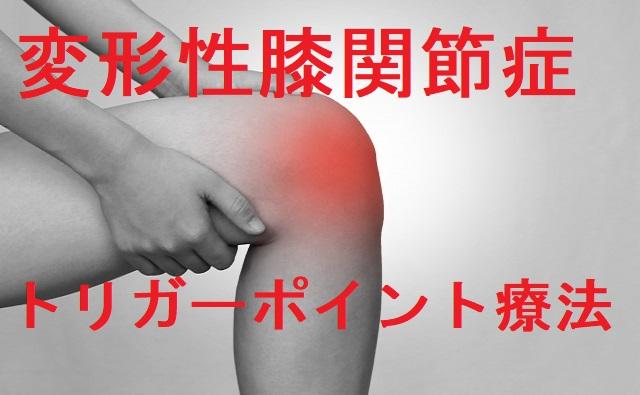 変形性膝関節症トリガーポイント療法