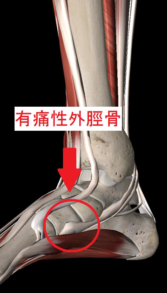 有痛性外脛骨とは
