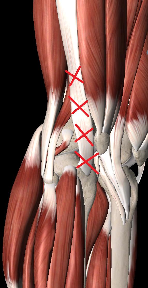 腸脛靭帯炎のトリガーポイント