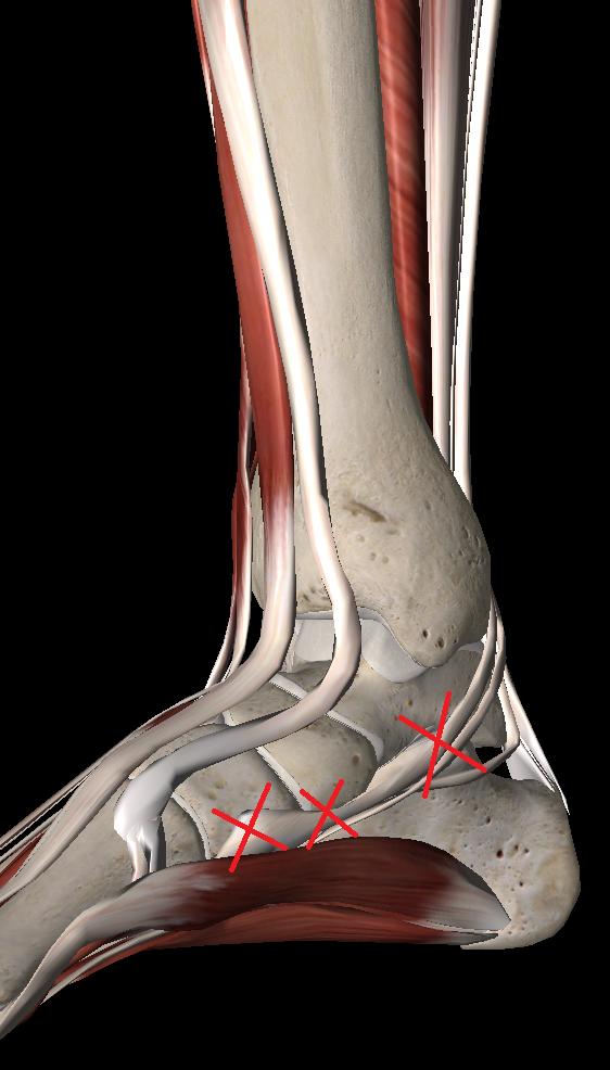 有痛性外脛骨のトリガーポイント