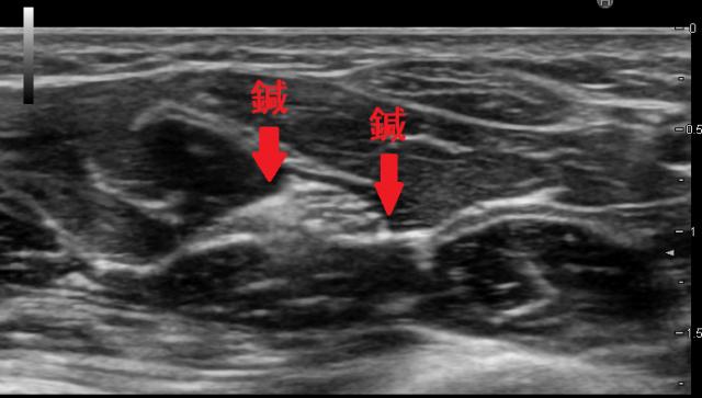 足根管症候群のトリガーポイント