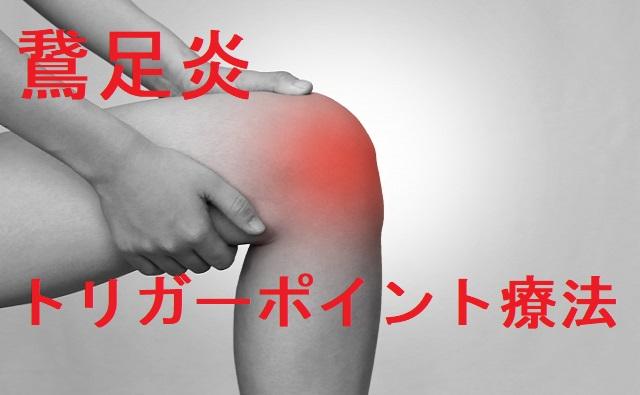 鵞足炎トリガーポイント療法