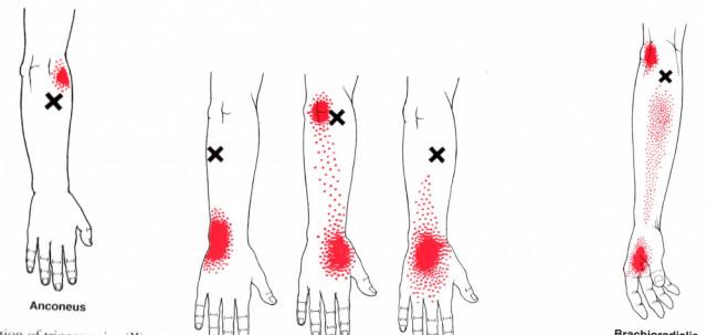 前腕伸筋トリガーポイント
