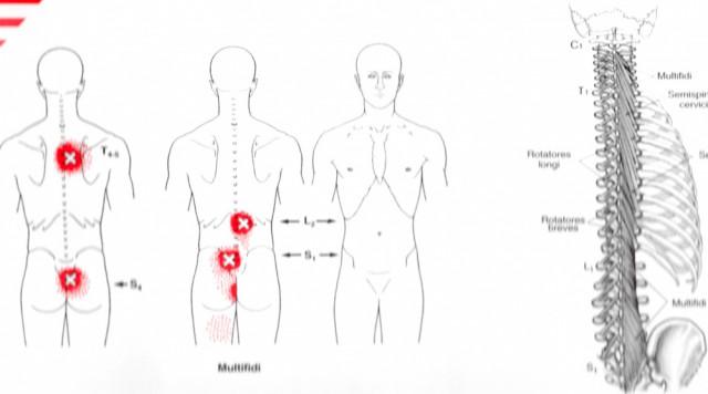 神経性胃炎のトリガーポイント