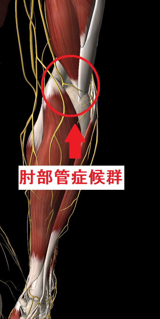 肘部管症候群とは