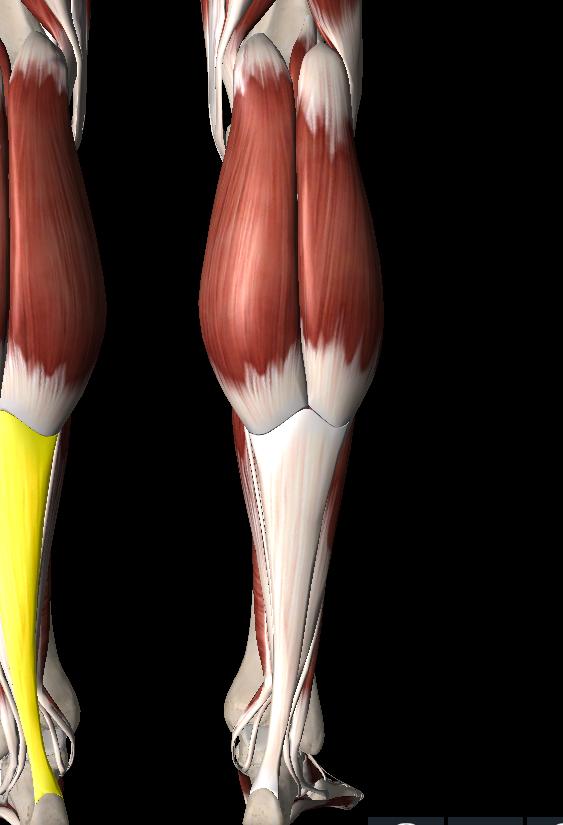 膝裏痛に関係するふくらはぎのトリガーポイント