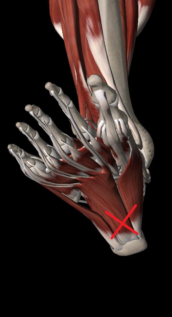 足底筋膜炎のトリガーポイント