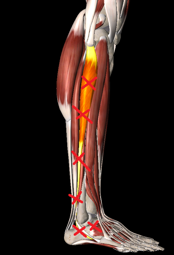 腓骨筋トリガーポイント