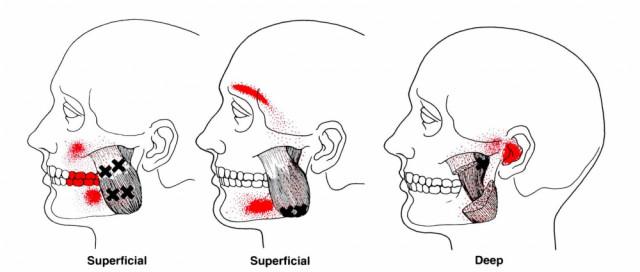 顎のトリガーポイント