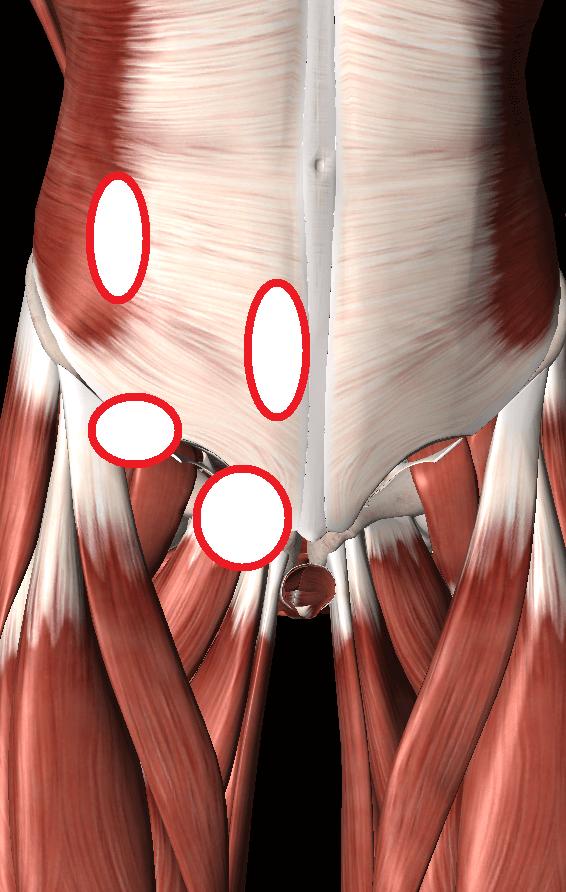 鼠径部痛症候群(グロインペイン症候群)
