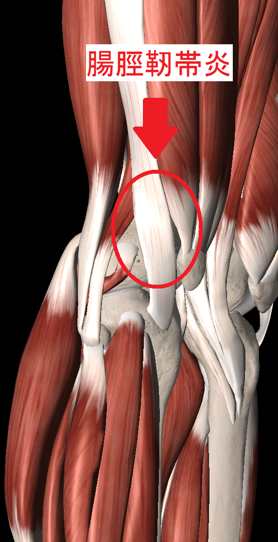 膝を伸ばすと外側が痛い原因