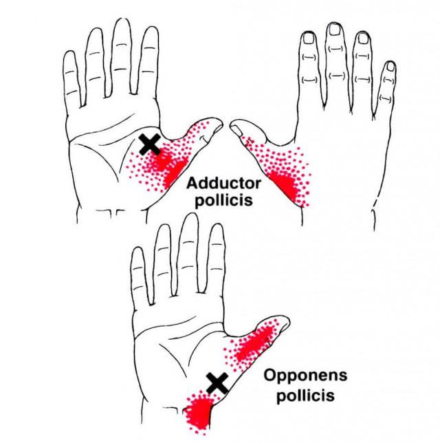 母指球筋の痛みトリガーポイント