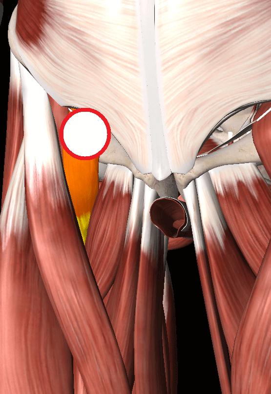 腸腰筋の痛み