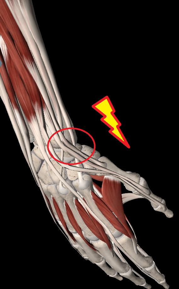 テニスで手首の親指側が痛い原因