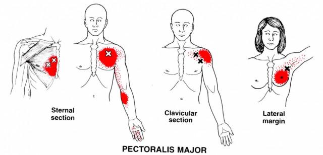 1.肩こりで脇の下が痛い原因