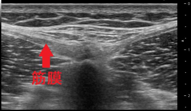 腰痛と足の付け根の痛みの治療