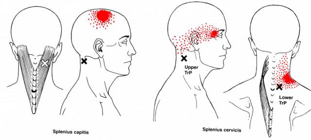 耳鳴りに効くトリガーポイント | 広島市の鍼灸院【なかいし鍼灸院】