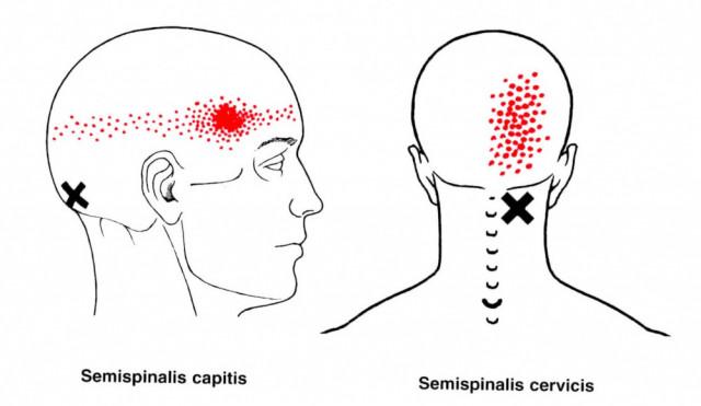 頭痛のトリガーポイントは首と肩のあの筋肉だ! | 広島市の鍼灸院【なかいし鍼灸院】